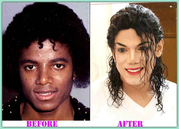 Look at Michael Jackson Plastic Surgery Michael Jackson ...