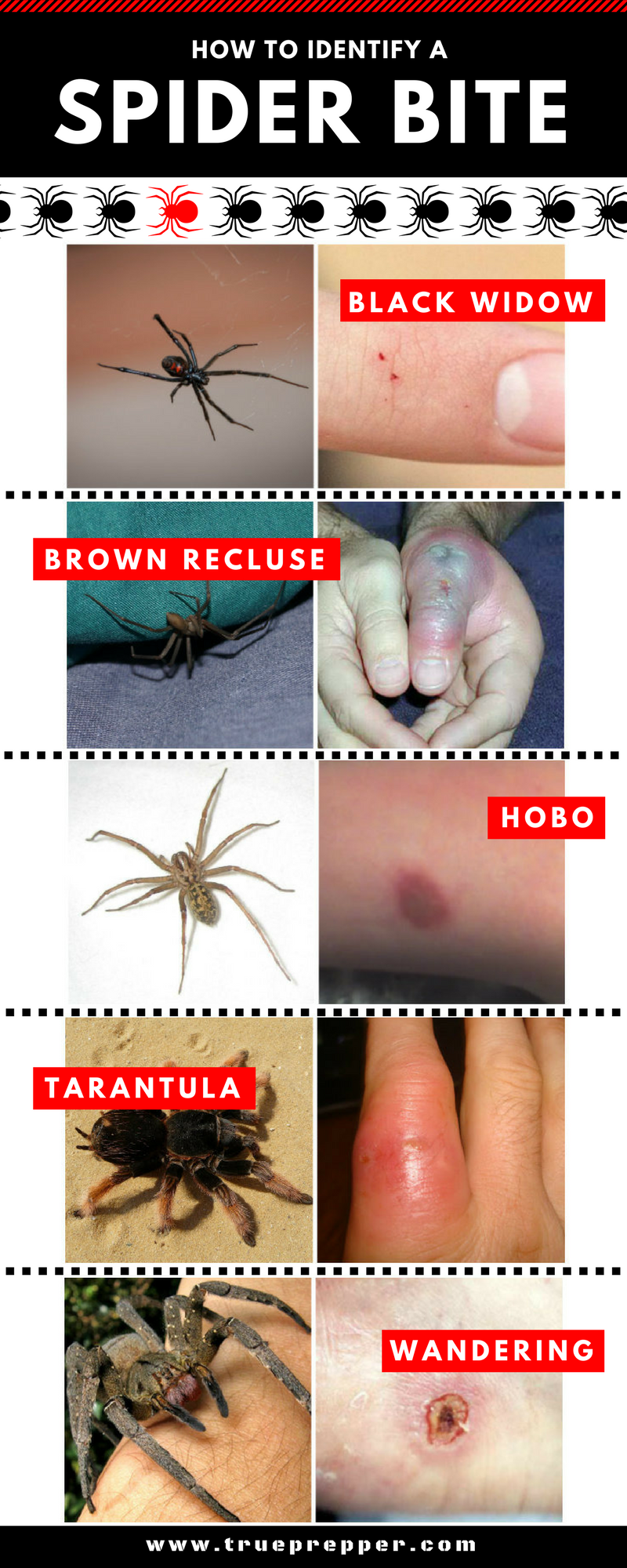 How to Identify a Spider Bite and Treat It Spider bites
