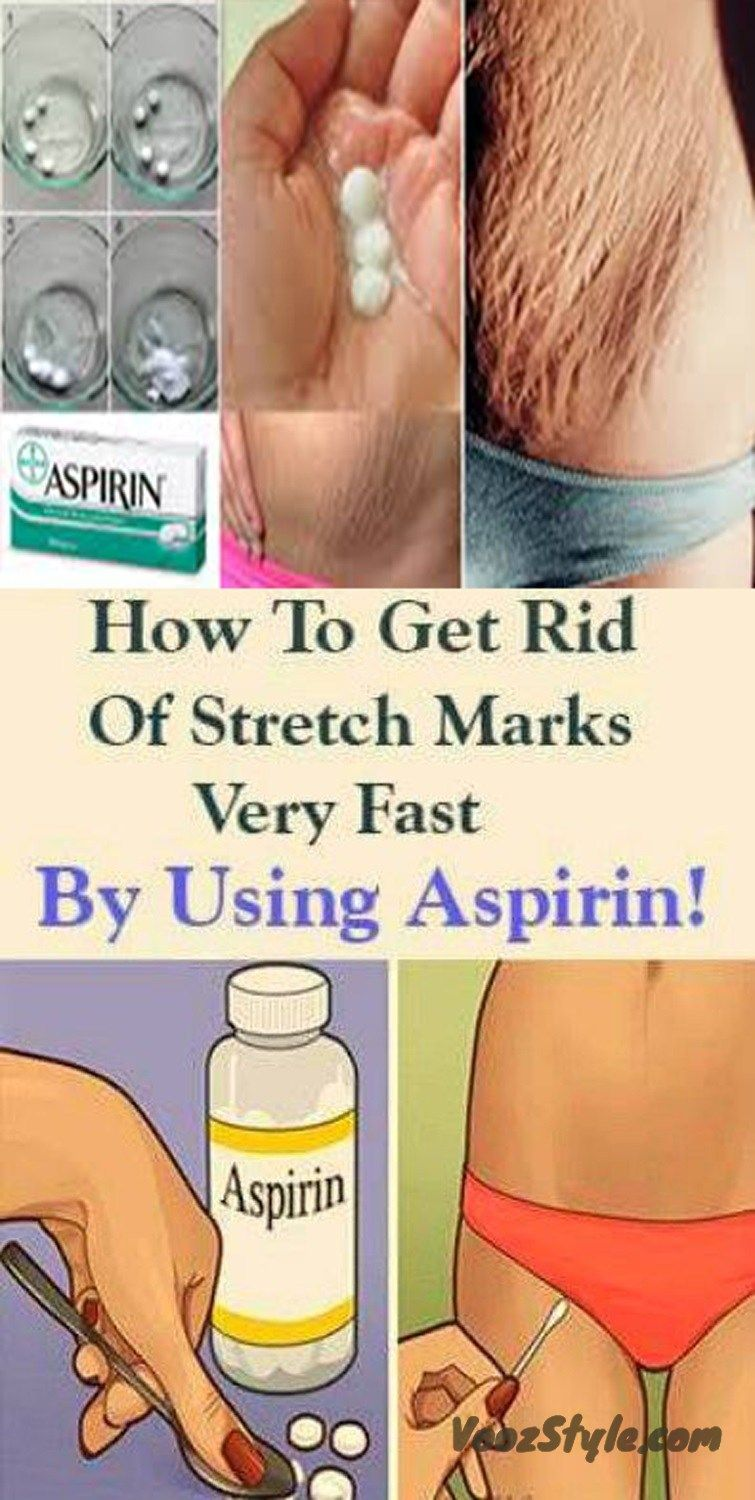 Stretch marks are visible lines on the skin which usually appear in
