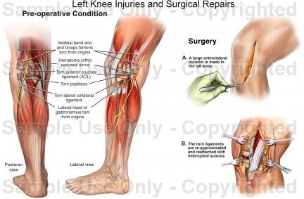 Left Knee Injuries And Surgical Repairs Medical Illustration