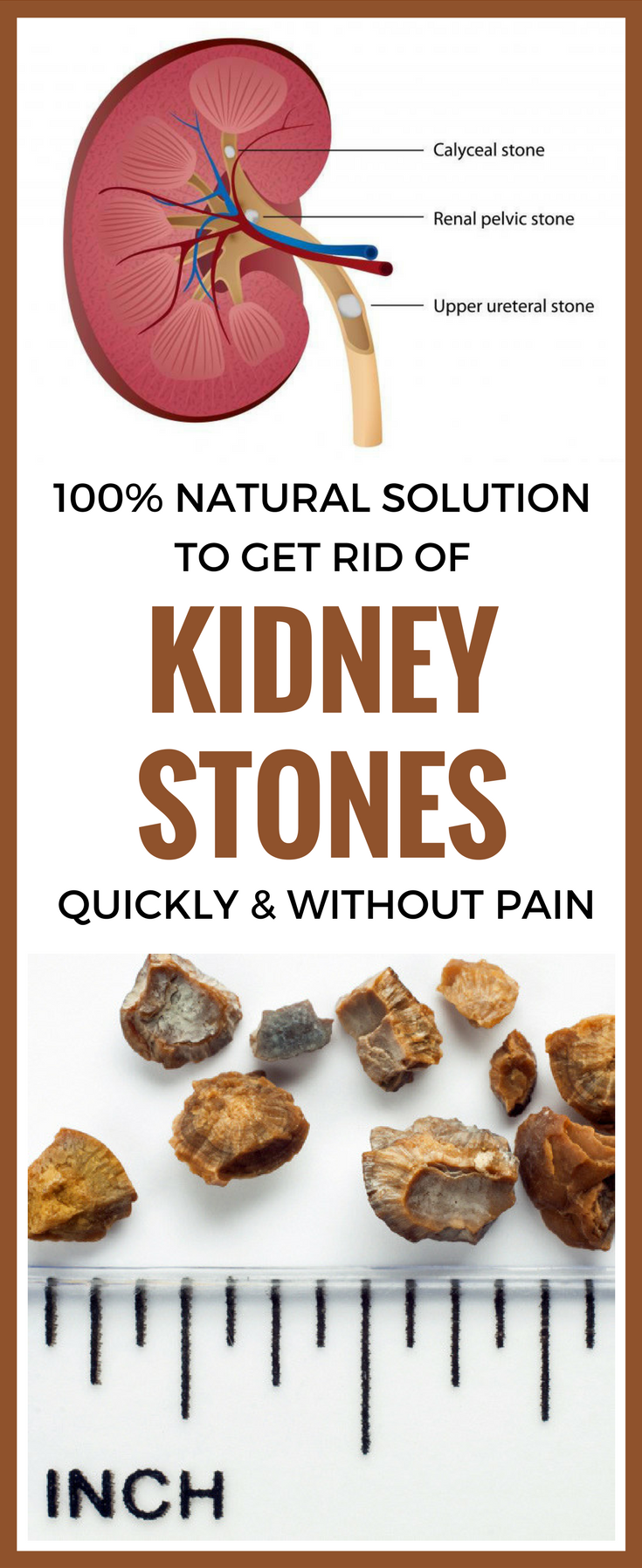 100 solution to get rid of kidney stones quickly and