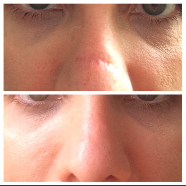 Pin on Before and Afters Dermaflage