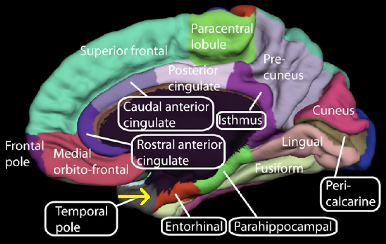 Medial surface of cerebral cortex - entorhinal cortex - Human brain ...