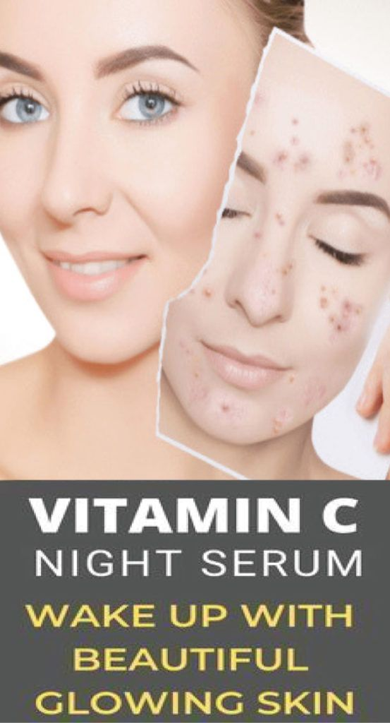DIY Vitamin C Serum Recipe For Wrinkles And Age Spots #homemadefacelotion