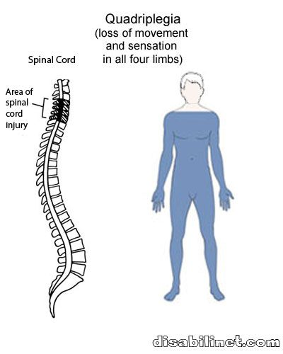 Quadriplegia Definition   Quadriplegia   Spinal canal ...