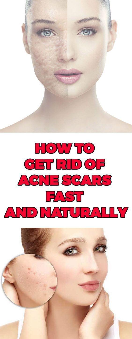 15 DIY Acne Scar Home Remedy Treatments #skintagremedy