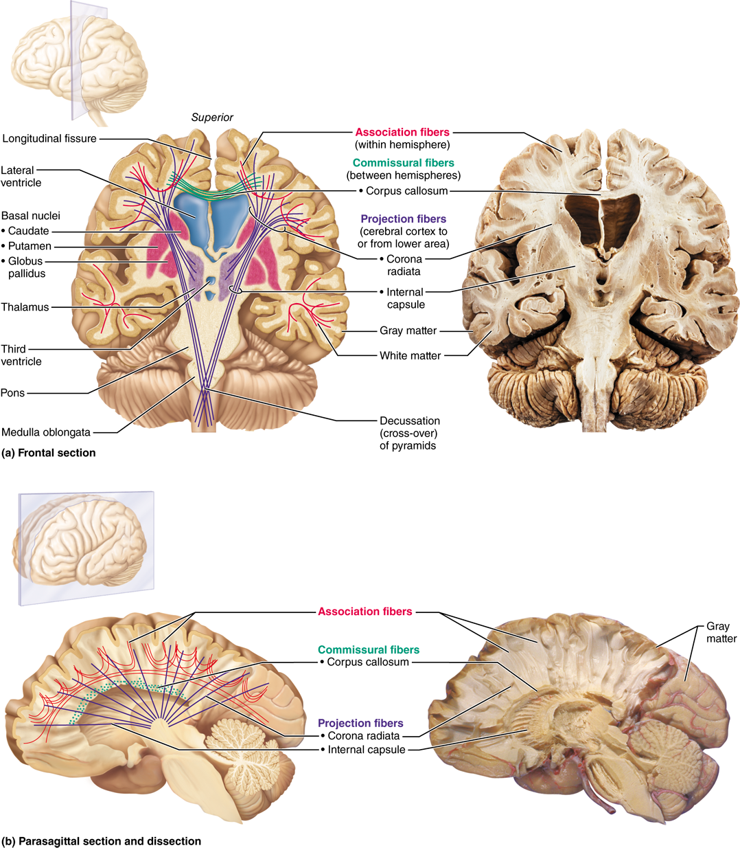 12.2 The cerebral hemispheres consist of cortex, white matter, and ...