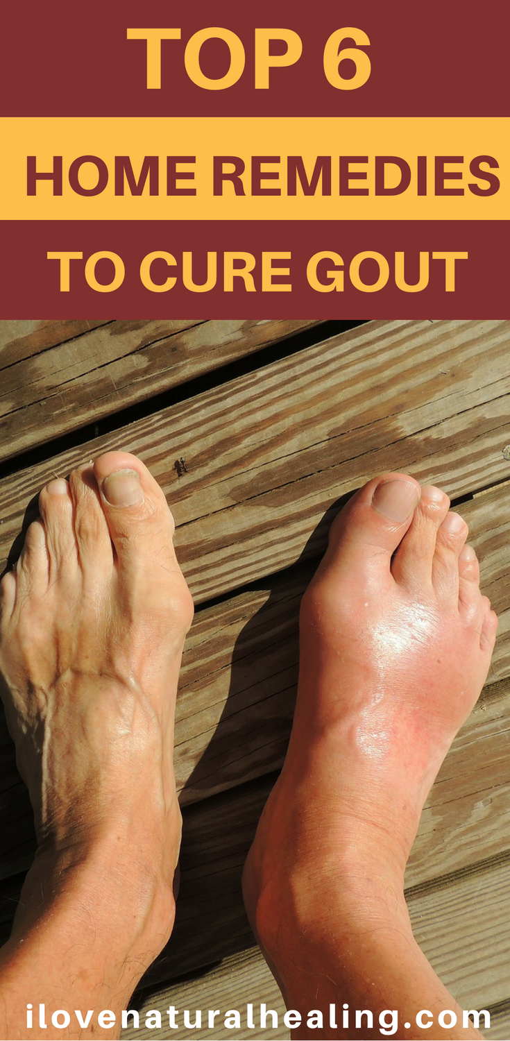 what are the foods containing uric acid high uric acid in urine treatment gout pain in second toe