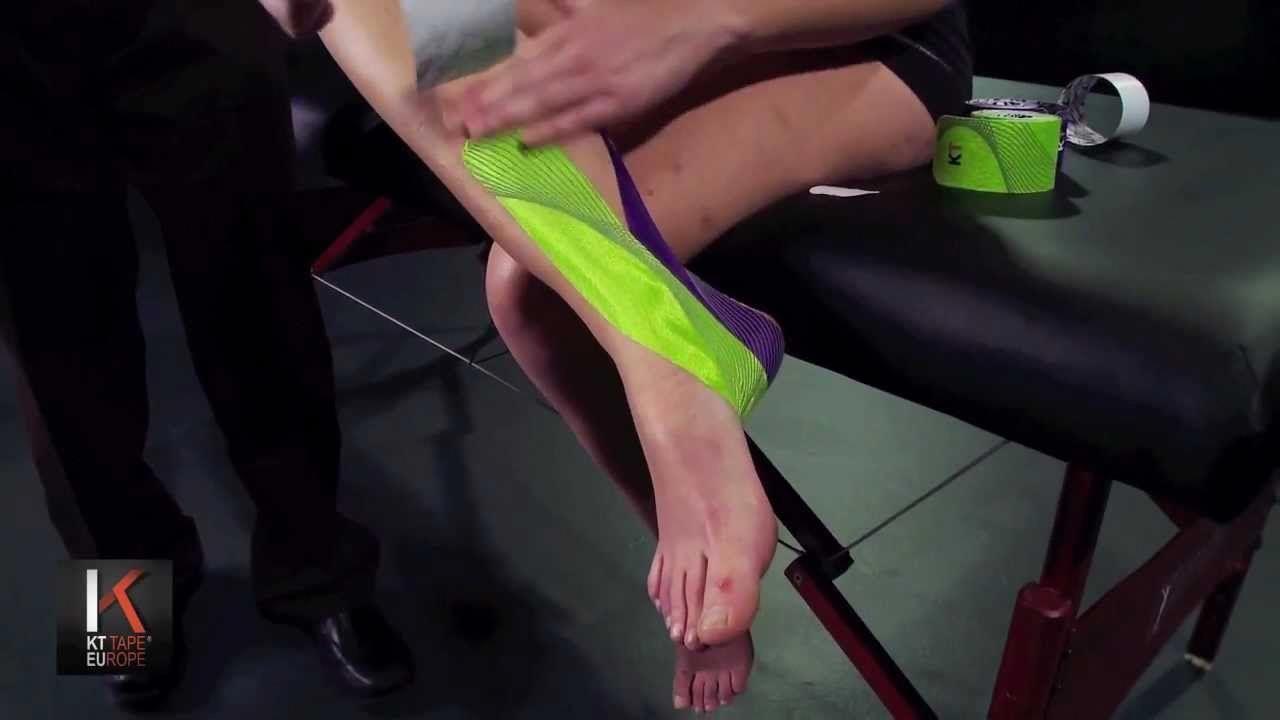 Kt tape europe posterior shin splints taping