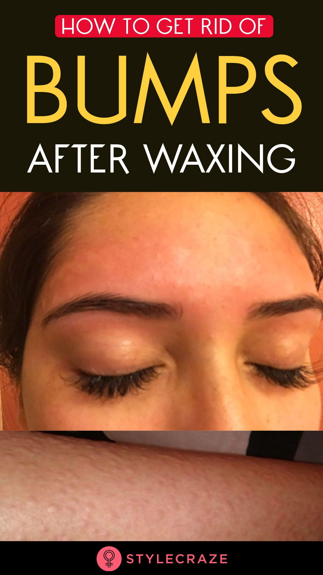 5 Home Remedies To Get Rid Of Bumps After Waxing Face Wax Irritated Skin Body Skin Care