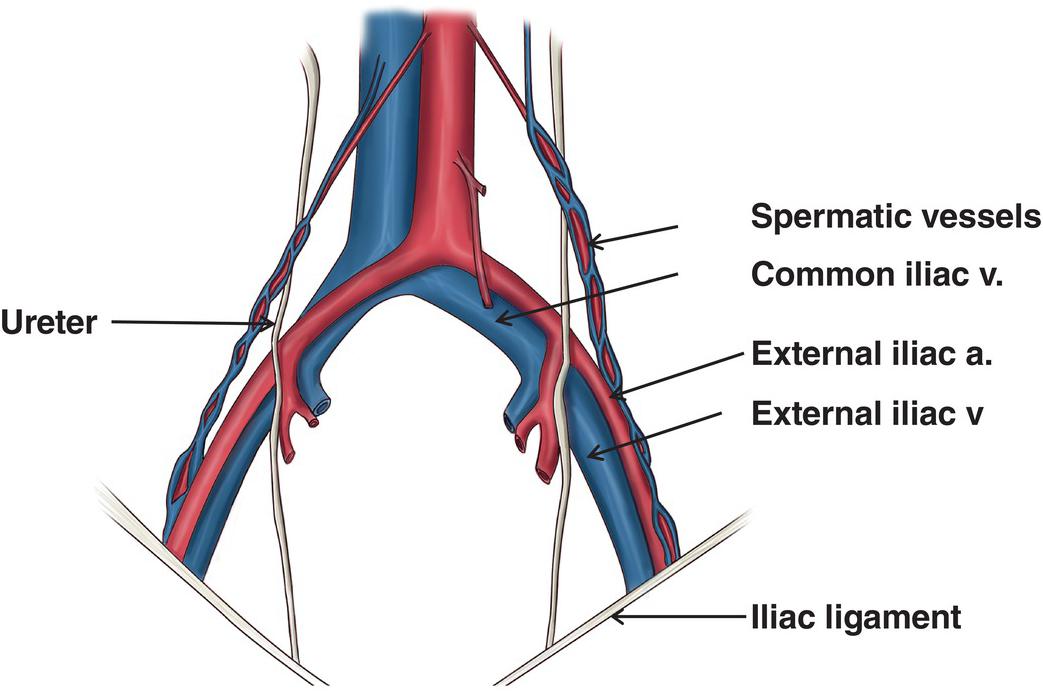 Image Result For External Iliac Artery And Vein Arteries And Veins Nurse Life Arteries