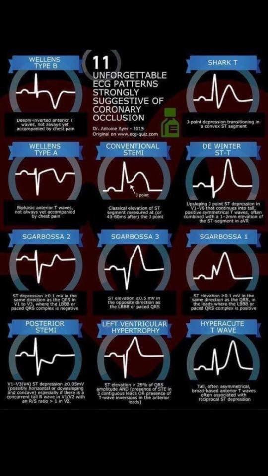 Pin by Trisha Paresa on Health | Cardiac nursing, Critical