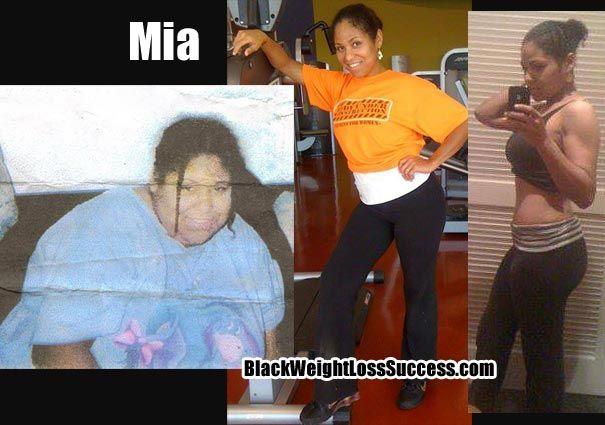 How Weight Loss Surgery Changed My Life