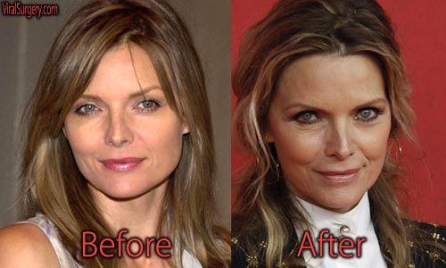 10 Years of Botox: Hollywood's Most Frozen Faces | Shape ...