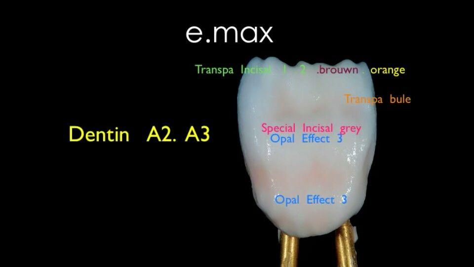 Central Dental Art Dental Anatomy Dental Ceramics