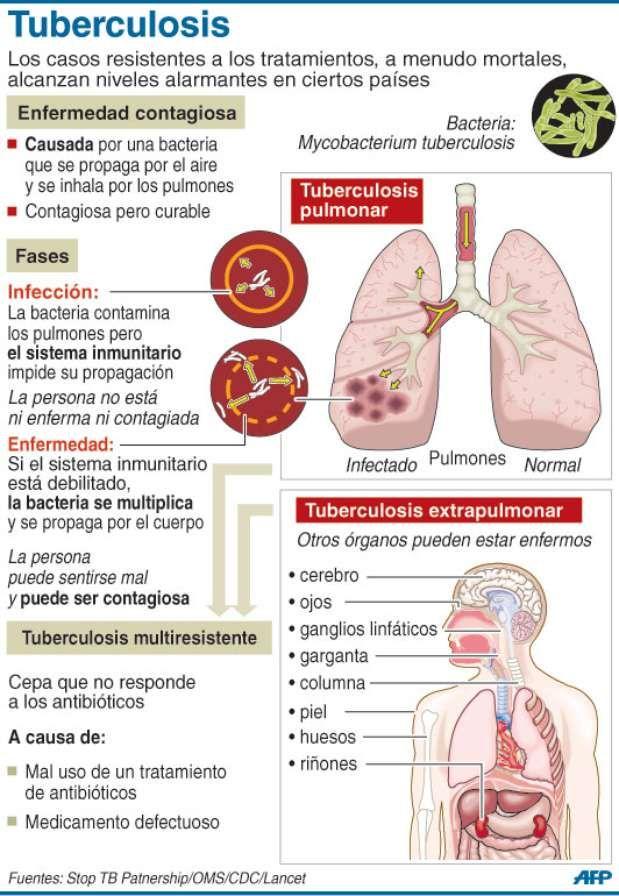 Tuberculosis | infecciosos | Pinterest | Medicina, Enfermería y Salud