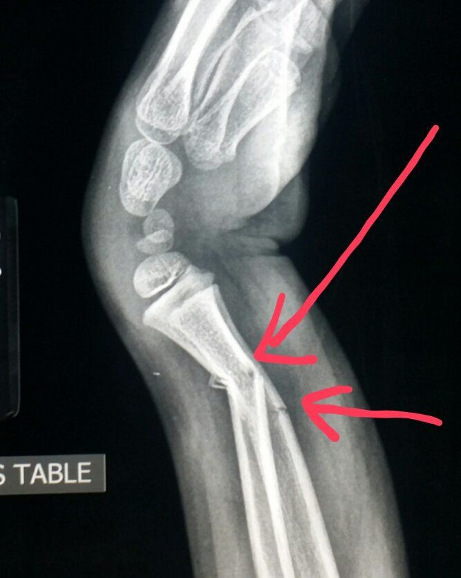 wrist xray shows fractures of the arm bones radius