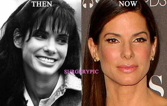 Celebrity Influence on Cosmetic Surgery Trends