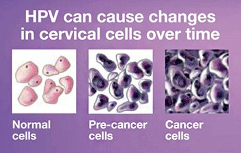 Hpv and cancer cells
