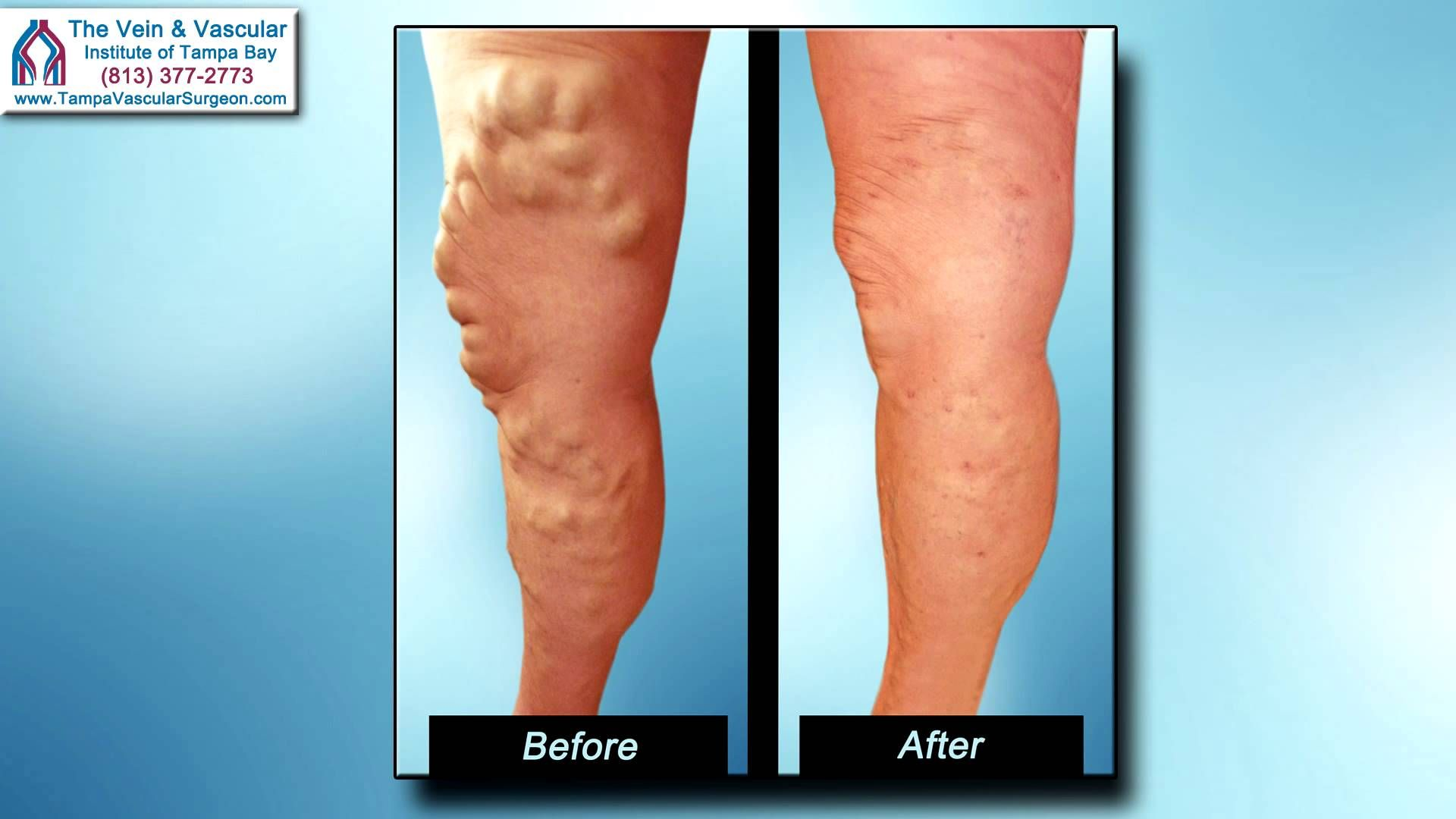 Tampa Vein Treatment using laser technology for varicose ...