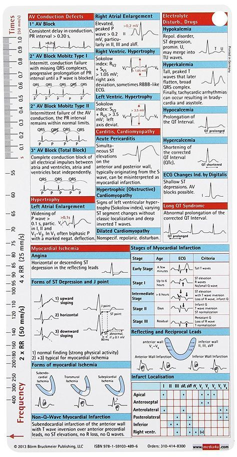 Ecg Pocketcard Borm 9781591034896 Cardiology Amazon Canada Critical Care Nursing Icu Nursing Cardiology Nursing