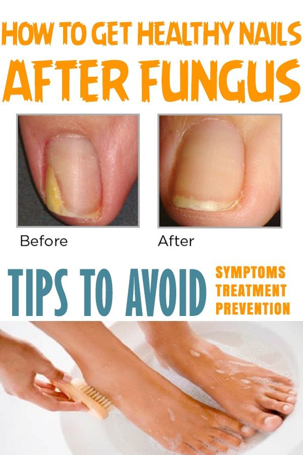 How to get HEALTHY NAILS AFTER FUNGUS! TIPS TO AVOID/ SYMPTOMS ...