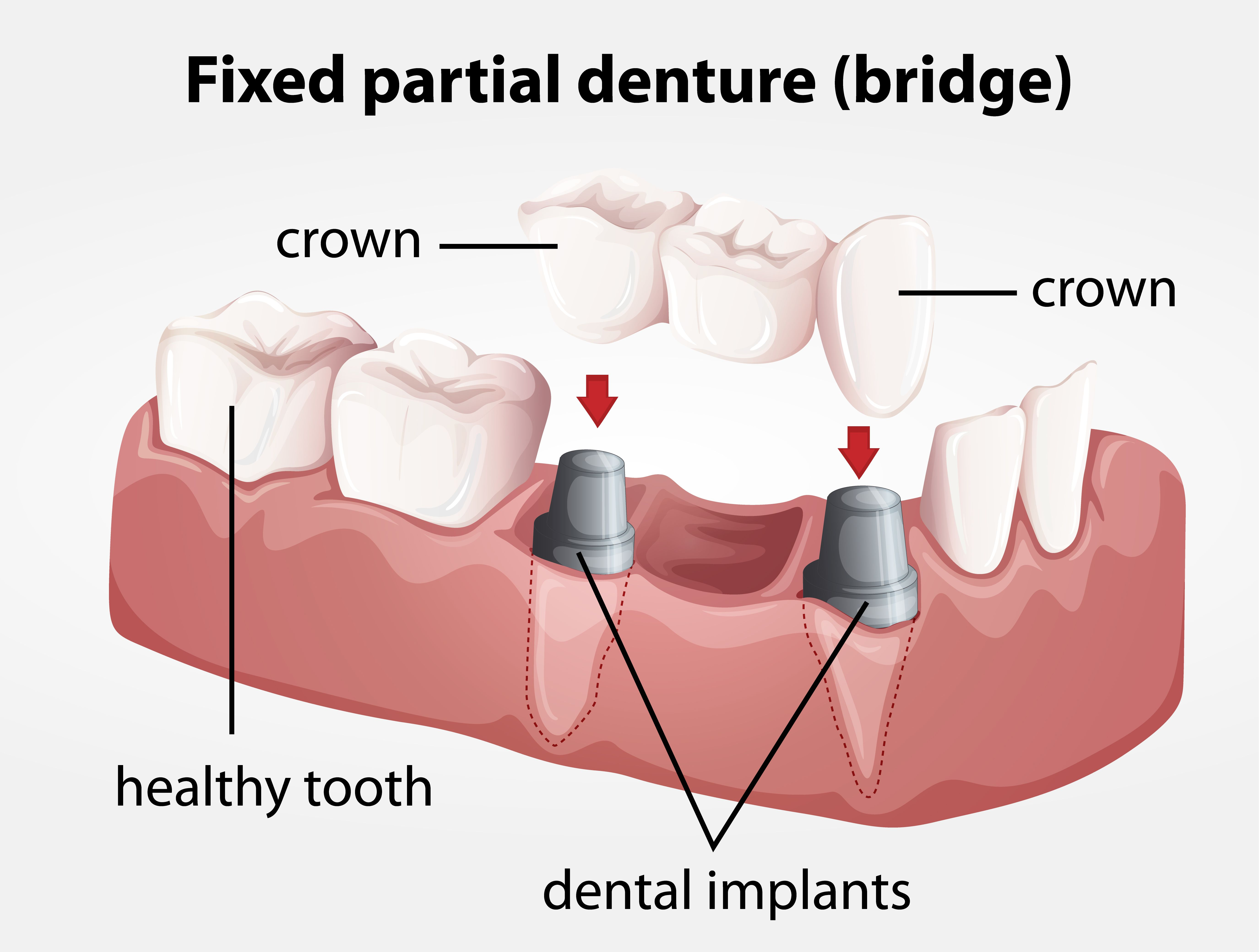 small resolution of bridge as the name suggests helps to connect the gap left by a missing tooth or teeth this imbalance caused by missing teeth if remains unchecked can