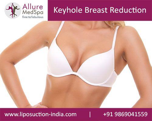 Tumescent breast augmentation