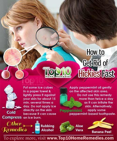 Hickey removal tricks