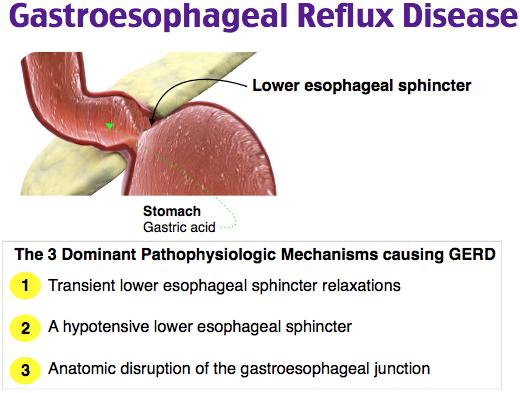 Gastroesophageal Reflux Disease Rosh Review