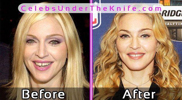 Madonna Diät