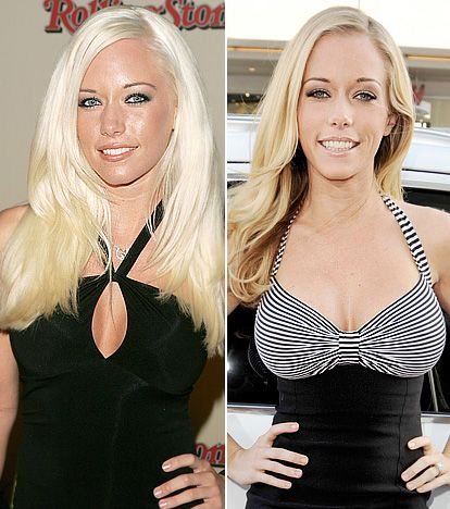 Kendra wilkinson new boobs apologise, but