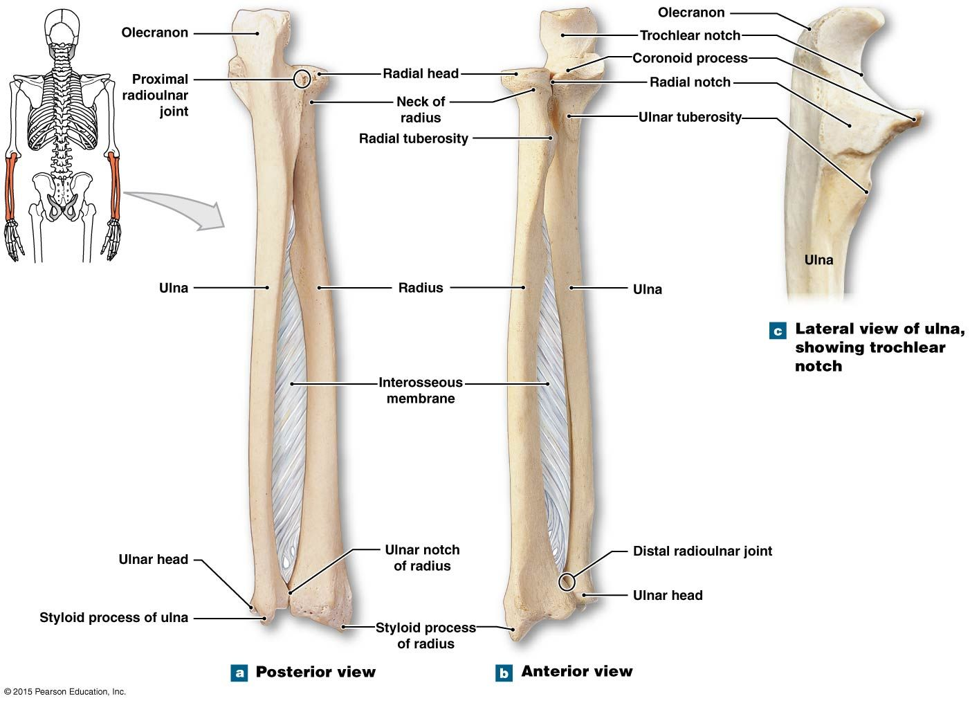 hight resolution of the right radius and ulna
