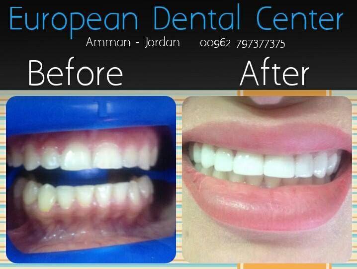 Pin By European Dental Center On ابتسامة هوليود فينييرز Dental Center Dental Amman Jordan