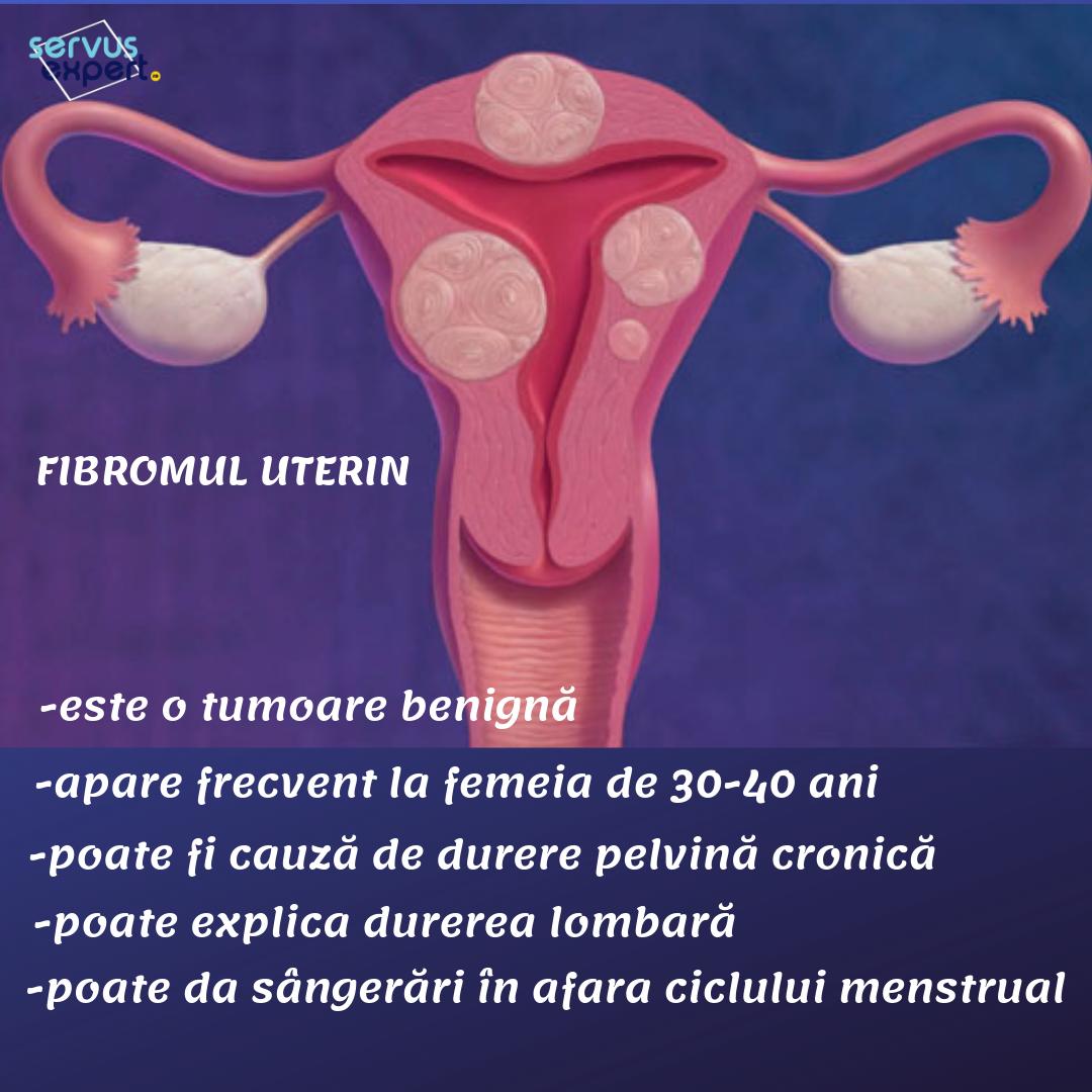 Metroragia: cauze, simptome, tratament