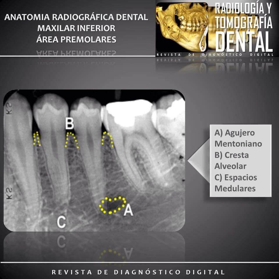 Maxilar Inferior - Área Premolares #anatomíadentaria ...