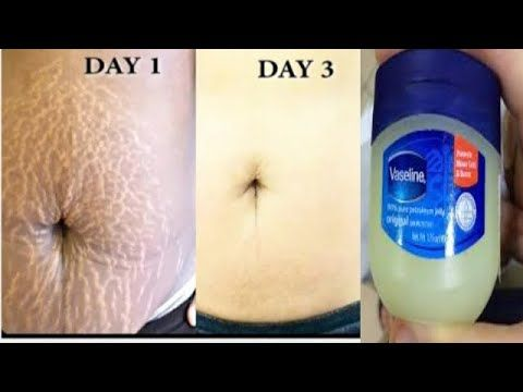 REMOVE STRETCH MARK AT HOME IN FEW DAYS USING VASE