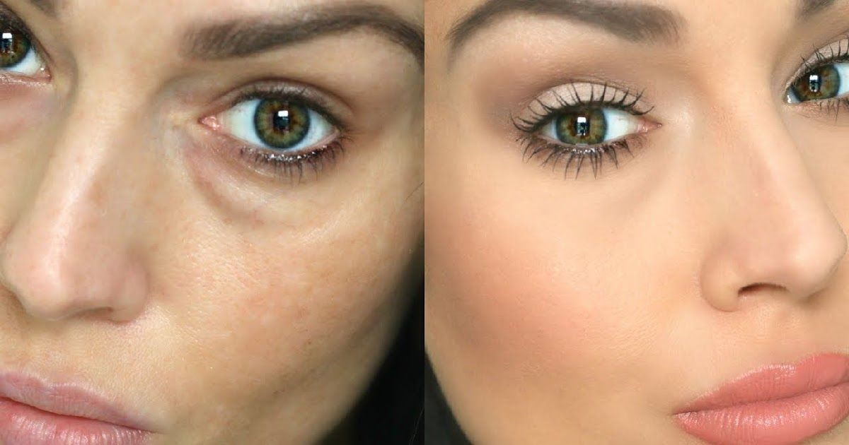 how to get rid of sunken eyes and dark circles
