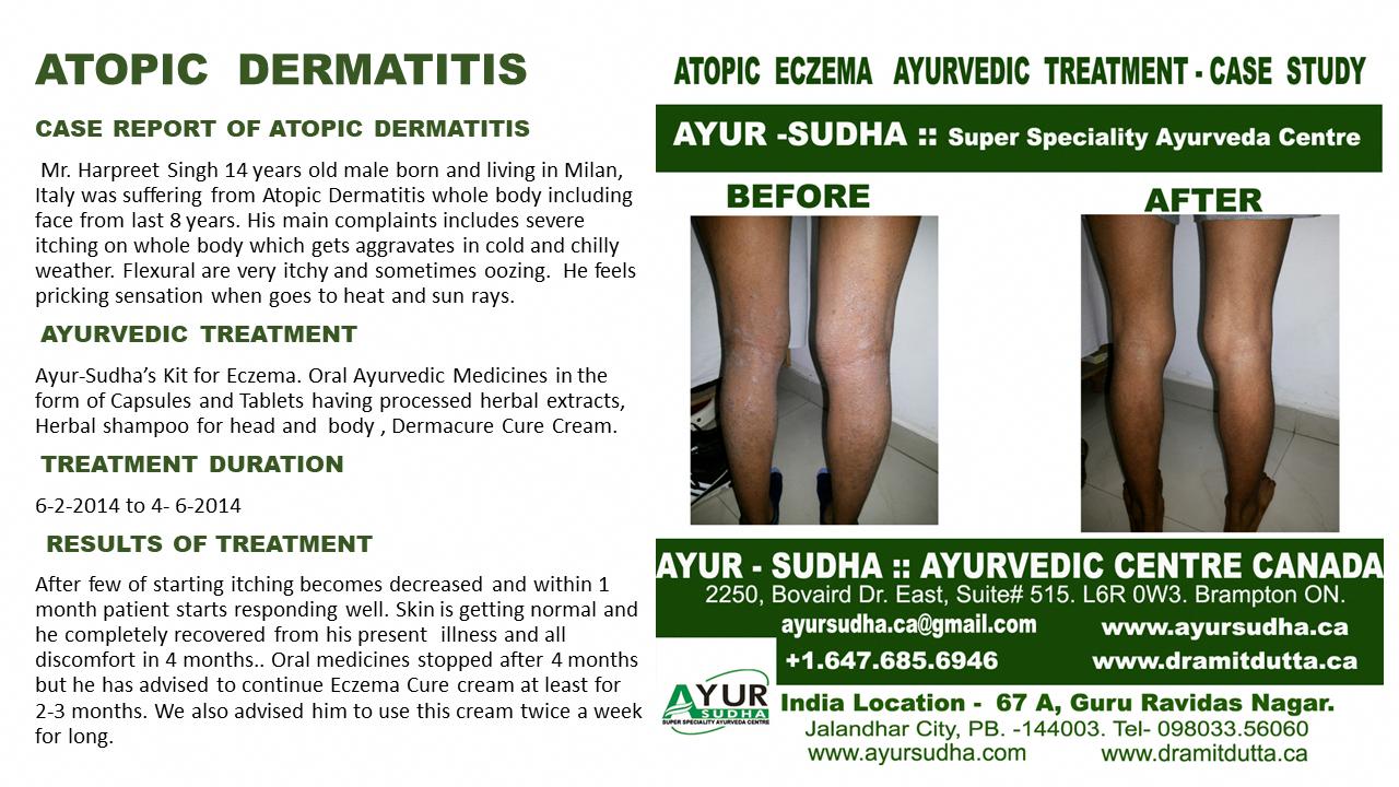 Eczema in Children, Atopic Eczema best ayurvedic treatment