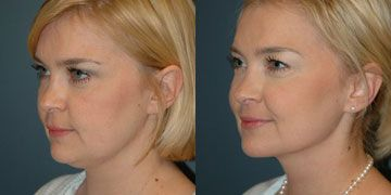 How To Get Rid Of Double Chin Neck Liposuction Liposuction Chin Liposuction