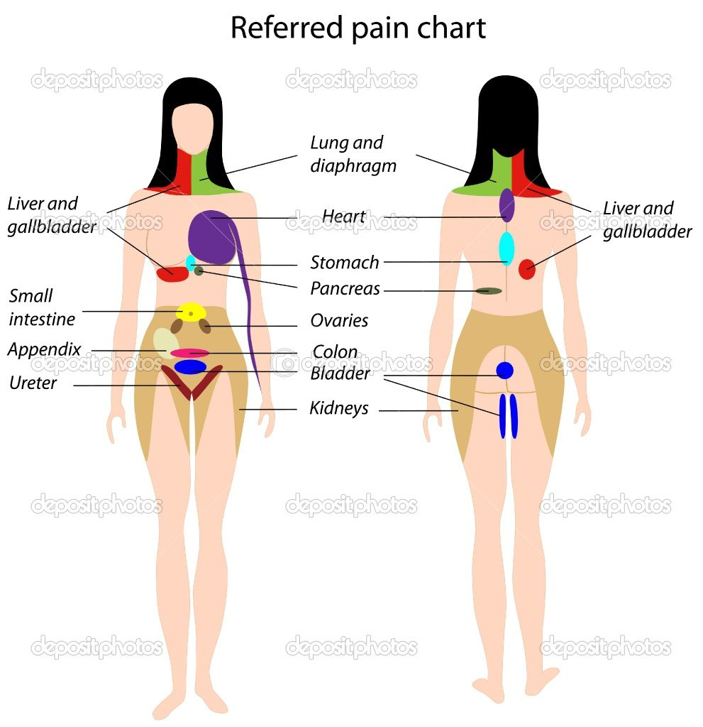 hight resolution of referred pain chart google search