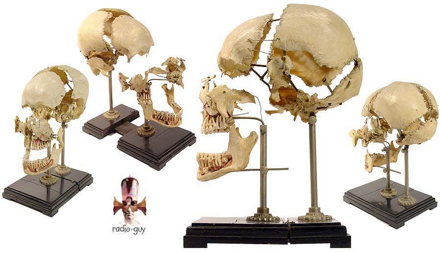 Beauchene Skull, or exploded skull preparation.