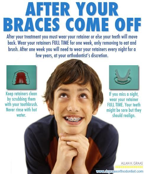 What happens after your #braces come off?