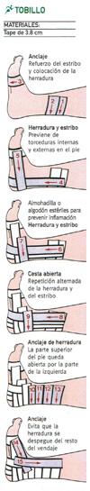 Cómo inmovilizar un tobillo esguinzado con tape mediante vendaje funcional paso a paso.