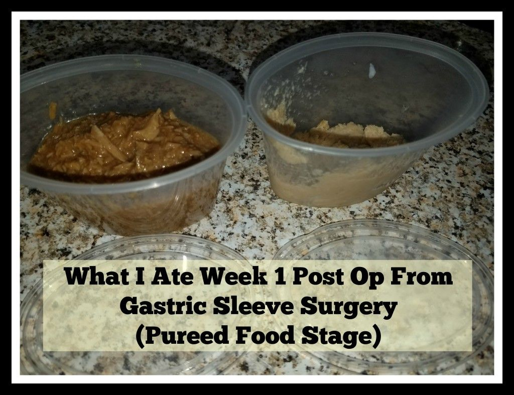 What I Ate and Drank Week 1 and 2 Post Op From Gastric