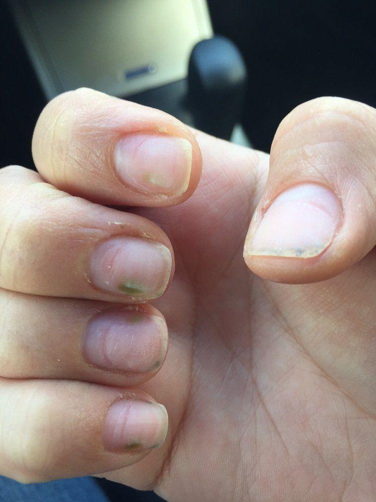 Nail Fungus From Artificial Nails Artnails Xyz