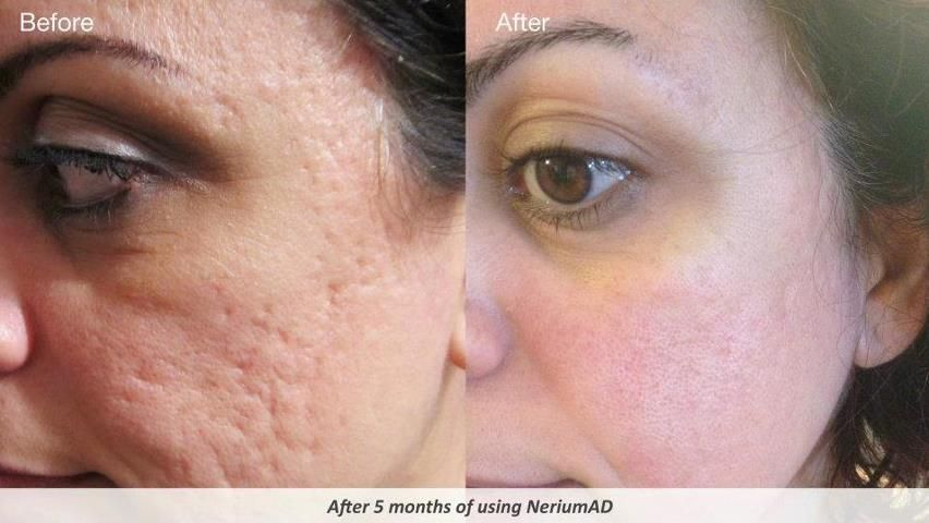 Nerium works on acne scars too! | Face and Skin | Nerium