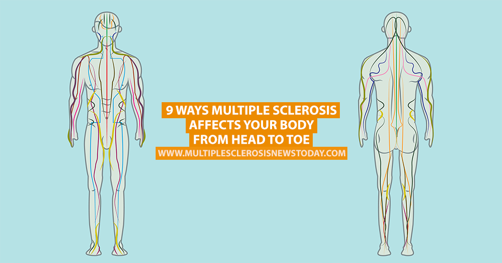9 Ways Multiple Sclerosis Affects Your Body From Head To Toe Multiple Sclerosis Multiple Body