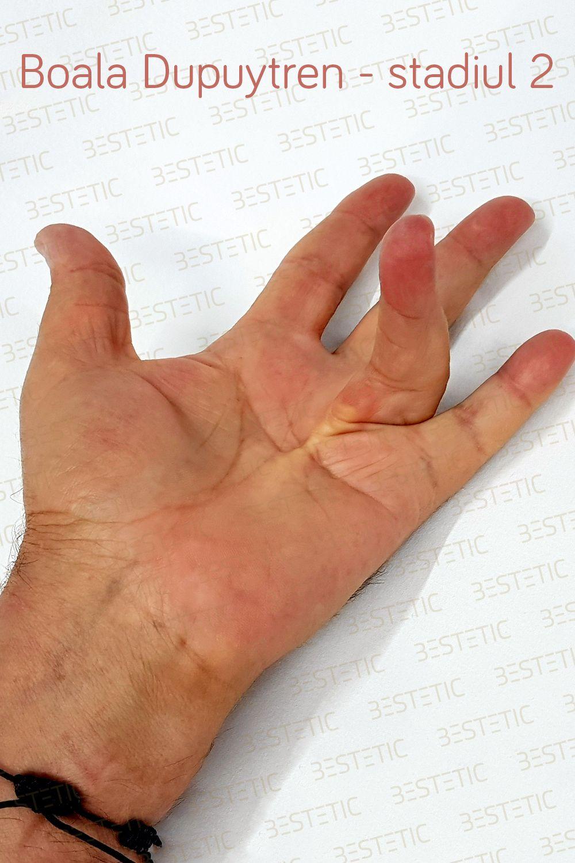 Adaugă Pin Pe Boala Sau Maladia Dupuytren