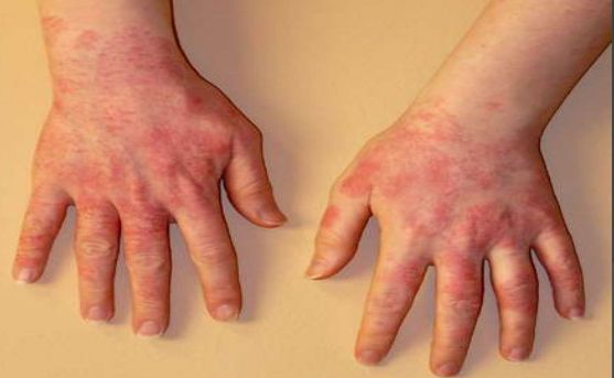 Contact Dermatitis Causes Natural Treatments Contact